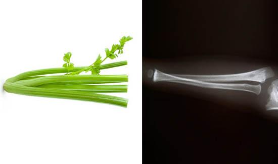 celer- kosti
