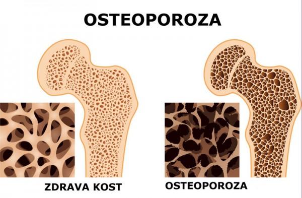 osteoporoza- kosti