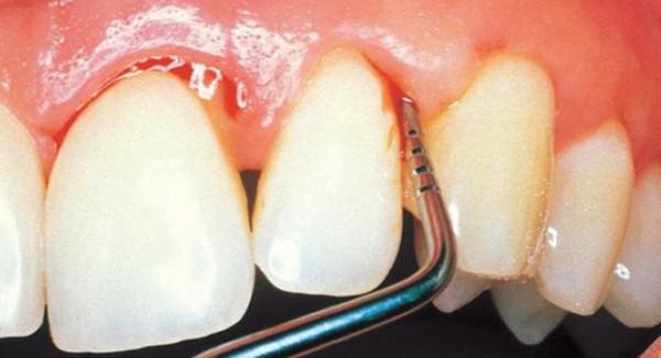 Šta je Parodontoza i kako je lečiti..