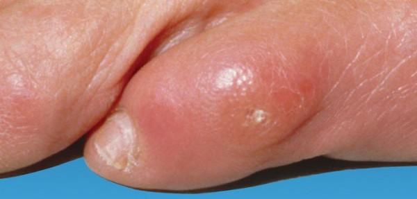 stopalo-zuljevi
