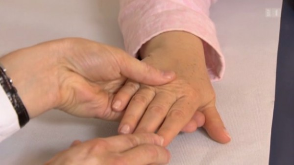 Ovaj suptilan znak na noktu može da upozorava na rak kože – evo kako da ga uočite (FOTO)