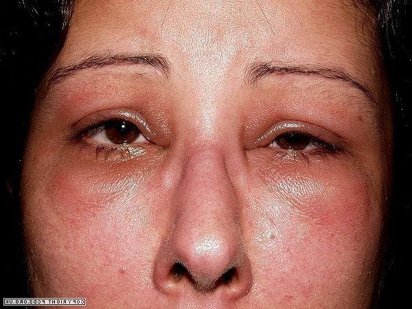 zena- alergija