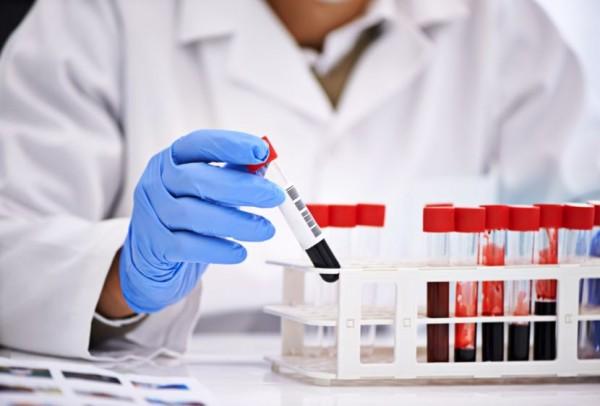anemija- krv