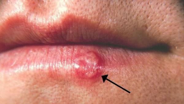 herpes- usta