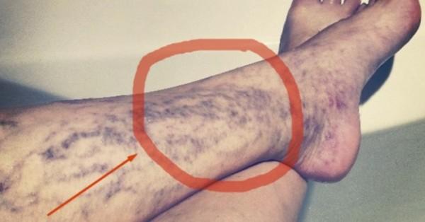 noge- stopala- kapilari