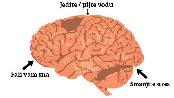 mozak-mamurluk