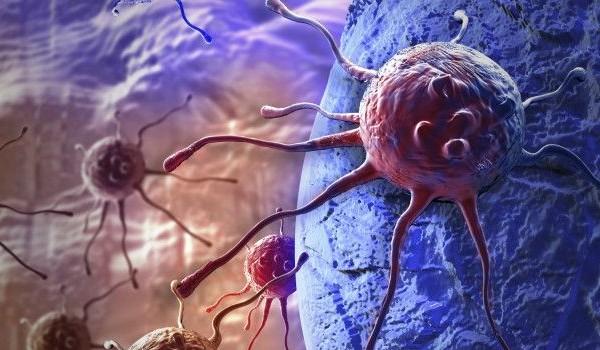 rak- kancer