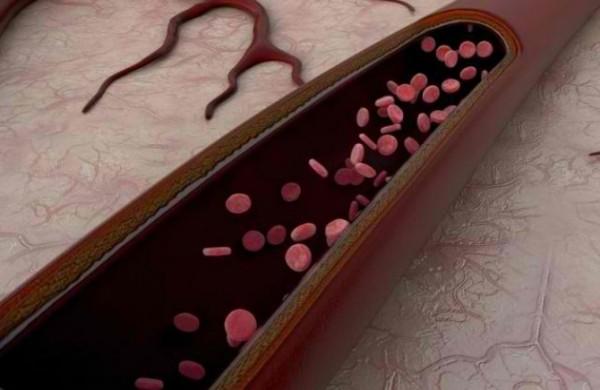 tromb-arterija