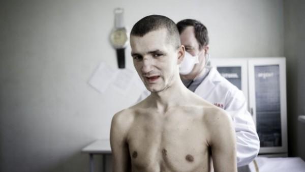 tuberkuloza- pregled