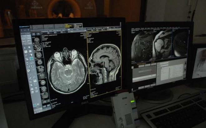 tomograf-mozak