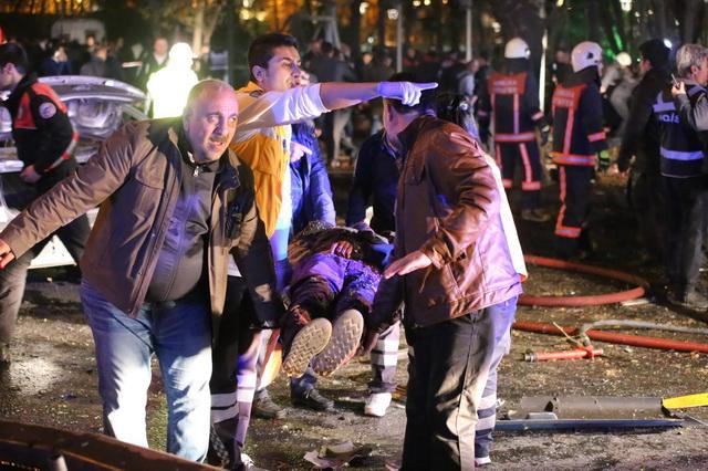 NOVI MASAKR U TURSKOJ: Dete bombaš samoubica se razneo na svadbi- 50 mrtvih, 94 ranjenih! (VIDEO)