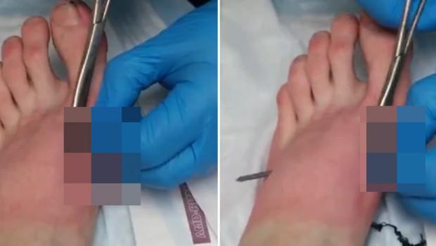 noga-stopalo-ekser