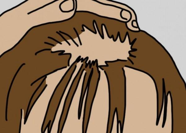 NIJE KOBNA BOLEST, NE PANIČITE: Imate pečate na glavi jer vam opada kosa- Evo šta može biti