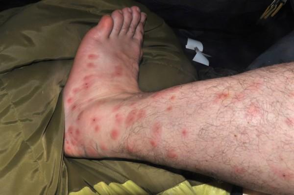 ujed-komarca