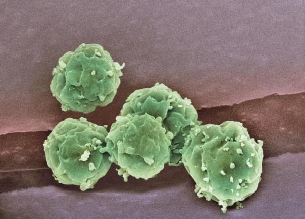 Da li imate gen koji uzrokuje Parkinsonovu bolest?