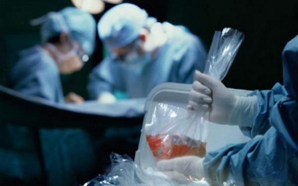 lekari-doktori-hirurzi-organi-operacija