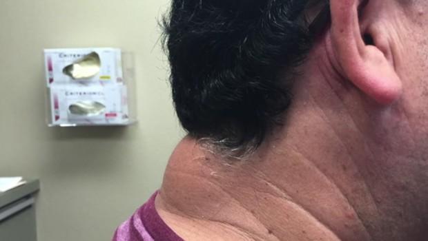 BUBULJICA VELIČINE TENISKE LOPTICE: Ovo čudo mu je izraslo na vratu, a unutra se krio UŽAS (VIDEO)