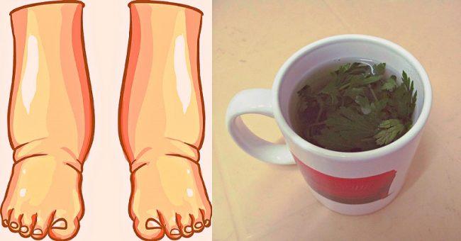 NARODNA MEDICINA: Ovo je najmoćnije prirodno sredstvo protiv oticanja nogu