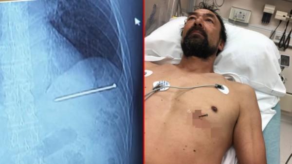 ekser-srce-pacijent-bolnica- covek